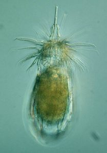 "A meiofauna example: ""loriciferan"" Armorloricus sp."